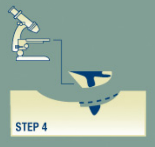 Mohs Surgery Process Step4